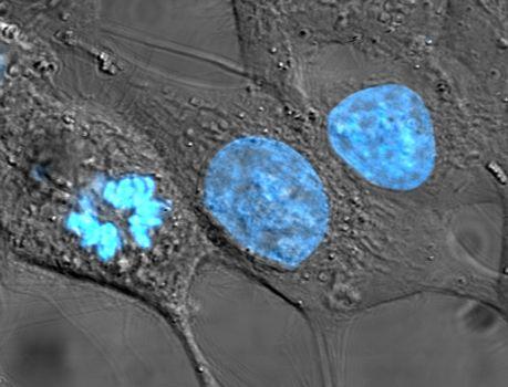 Komórki HeLa wybarwione barwnikiem Hoechst 33258. /źródło: wiki (domena publ.)