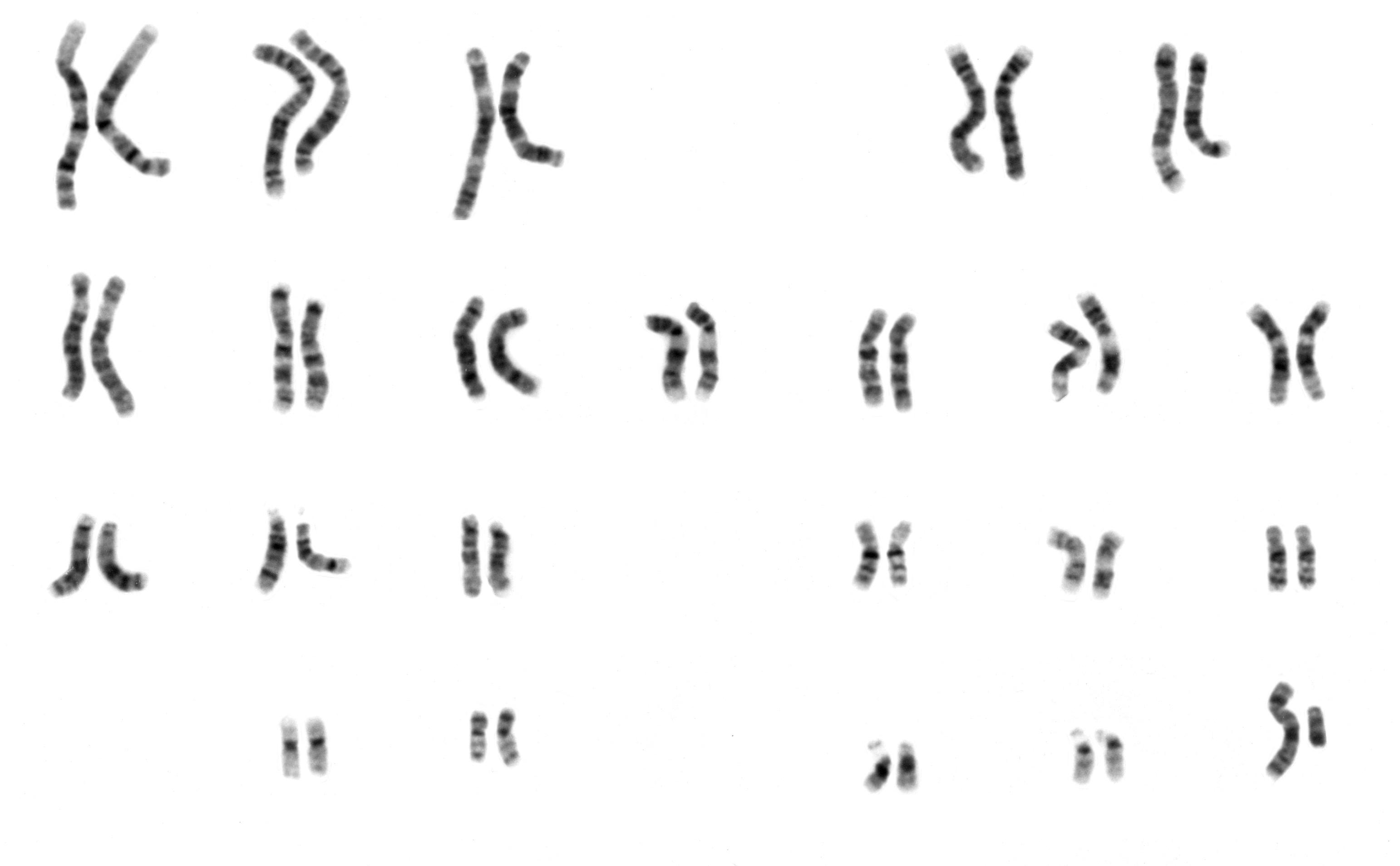 """Zestaw 23 par ludzkich chromosomów. Tutaj """"dawcą"""" był mężczyzna - ostatnia para chromosomów na dole po prawej to chromosomy płci. Po ich wyraźnej asymetrii poznać można właśnie płeć osoby, od której pochodziła próbka: męski chromosom Y jest bowiem znacząco mniejszy od chromosomu X (i jak widać, rozmiar czasem ma duże znaczenie).  /źródło: National Human Genome Research Institute (domena publiczna)"""