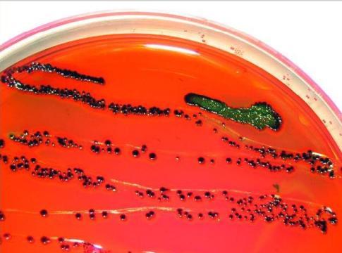 Kolonie E.coli /źródło: wiki; domena publiczna