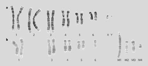W panelu górnym: wybarwione chromosomy zdrowego diabła; w panelu dolnym widać zaś chromosomy pochodzące z raka pyska. /Przedruk za zgodą Macmillan Publishers Ltd., Pearse and Swift, Nature 439:549 ©2006