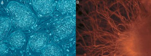 Po lewej ludzkie komórki macierzyste, po prawe uzyskana z nich komórka nerwowa. /Za: Russo, PLoS Biol  3(7): e234 (CC BY)
