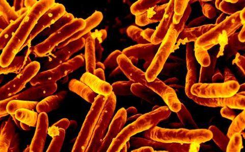 Prątki gruźlicy (M.tuberculosis) widziane pod mikroskopem elektronowym.