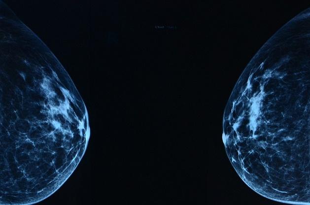 Mammogram/źródło: flickr; slgckgc (CC BY)