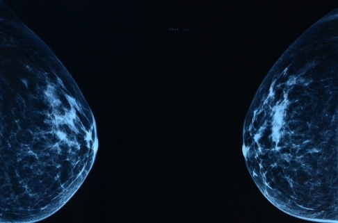 Mammogram/źródło: flickr; slgckgc (CC BY)