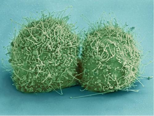 Najbardziej znane komórki rakowe na świecie (HeLa) zaraz po podziale. /domena publiczna