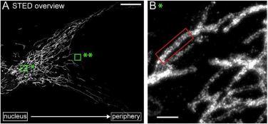 Klastry mitofiliny w okołojądrowym mitochondrium obserwowane za pomocą mikroskopu STED. /źródło: Jans et al., PNAS (2013)