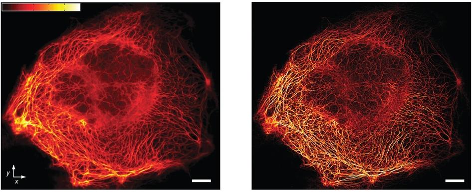 Pasma kerytyny w komórkach PtK2 Po lewej widziane przez mikroskop szerokiego pola, po prawej - za pomocą techniki STED. /źródło: Chmyrov et al, Nat Methods (2013)