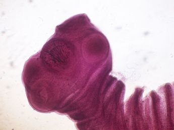 Głowa tasiemca Taenia solium - innego pasożyta, który może trafić do ludzkiego mózgu i prowadzić do epilepsji. /źródło: wiki; Robert Galindo (CC BY-SA 3.0)