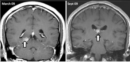 Przemieszczający się w mózgu pacjenta tasiemiec Spirometra erinaceieuropaei. /źródło: Bennett et al., Genome Biology 2014, 15: 510 (CC BY)